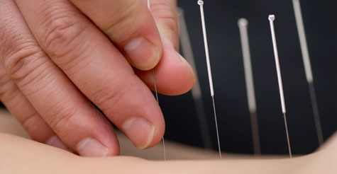 $29 for $200 worth of acupuncture services from AcuHealing Centers (12 locations)