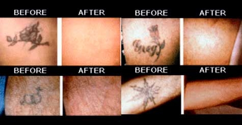 Voice daily deals 75 for a tattoo removal for up to a 2 for Free tattoo removal denver